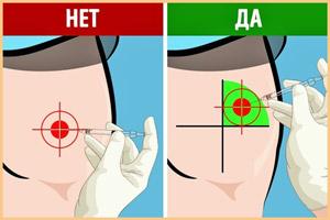 Внутримышечные инъекции